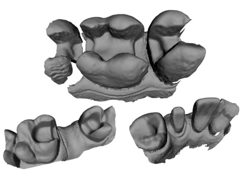 3D_tooth_1