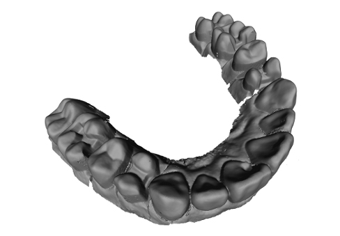3D_tooth_2